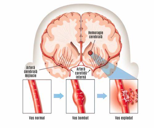 hemoragie intracerebrala