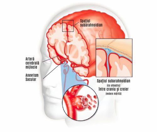 hemoragie subarahnoidiana